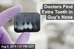 Doctors Find Extra Tooth in Really Odd Place