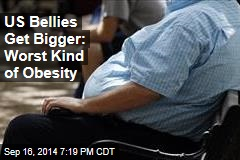 US Bellies Get Bigger: Worst Kind of Obesity