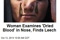 Woman Examines 'Dried Blood' in Nose, Finds Leech
