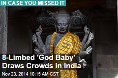 8-Limbed 'God Baby' Draws Crowds in India