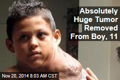 Absolutely Huge Tumor Removed From Boy, 11