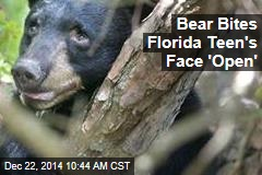 Bear Bites Florida Teen's 'Face Open'