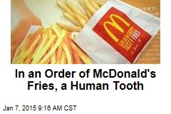 In an Order of McDonald's Fries, a Human Tooth
