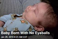 Baby Born With No Eyeballs
