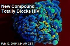 New Compound Totally Blocks HIV