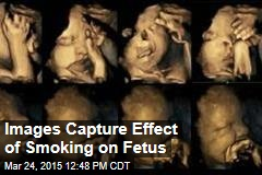 Study Shows Effect of Smoking on Fetus