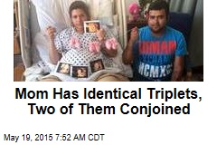 Mom Has Identical Triplets, Two of Them Conjoined