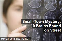 Small-Town Mystery: 9 Brains Found on Street