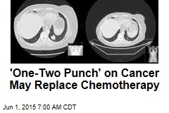 'One-Two Punch' on Cancer May Replace Chemotherapy