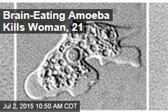 Brain-Eating Amoeba Kills Woman, 21