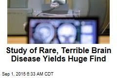 Mad Cow Relative Yields Major Brain Breakthrough