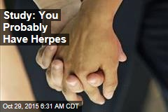 Study: You Probably Have Herpes