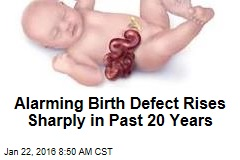 Alarming Birth Defect Rises Sharply in Past 20 Years
