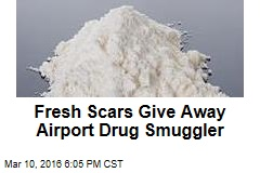 Fresh Scars Give Away Airport Drug Smuggler