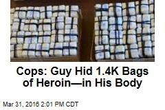 Cops: Guy Hid 1.4K Bags of Heroin—in His Body