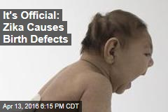 It's Official: Zika Causes Birth Defects