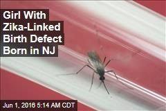 Girl With Zika-Linked Birth Defect Born in NJ