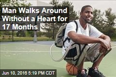 Man Walks Around Without a Heart for 17 Months