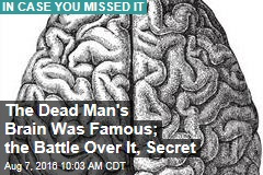 The Dead Man's Brain Was Famous, the Battle Over It, Secret