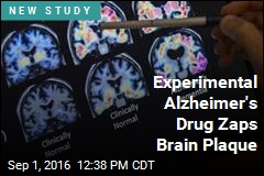 Experimental Alzheimer's Drug Zaps Brain Plaque