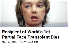 Recipient of World's 1st Partial Face Transplant Dies