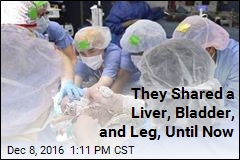 They Shared a Liver, Bladder, and Leg, Until Now