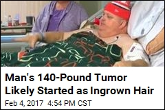 Man's 'Fat' Was Actually 140-Pound Tumor