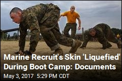 Marine Recruit's Skin 'Liquefied' During Boot Camp: Documents