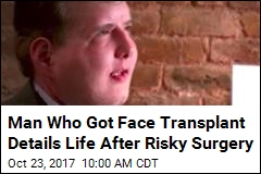 Man Who Got Face Transplant Details Life After Risky Surgery
