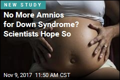 Doctors Reveal Better Prenatal Test for Down Syndrome