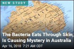 Mystery as Flesh-Eating Ulcers Surge in Australia