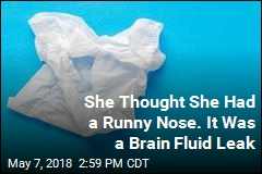 She Thought She Had a Runny Nose. It Was a Brain Fluid Leak