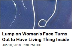 Lump on a Woman's Face Turns Out to Be a Worm