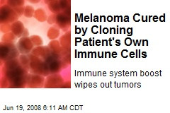 Melanoma Cured by Cloning Patient's Own Immune Cells