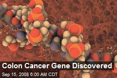 Colon Cancer Gene Discovered