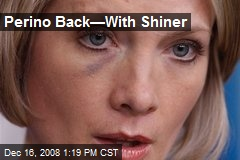 Perino Back—With Shiner