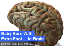 Baby Born With Extra Foot ... in Brain