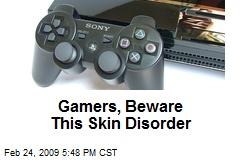 Gamers, Beware This Skin Disorder
