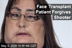 Face Transplant Patient Forgives Shooter