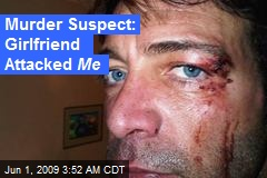 Murder Suspect: Girlfriend Attacked Me