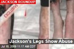 Jackson's Legs Show Abuse