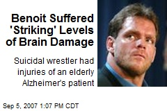 Benoit Suffered 'Striking' Levels of Brain Damage