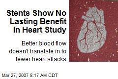 Stents Show No Lasting Benefit In Heart Study