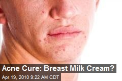 Acne Cure: Breast Milk Cream?