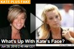 What's Up With Kate's Face?