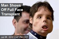 Man Shows Off Full Face Transplant